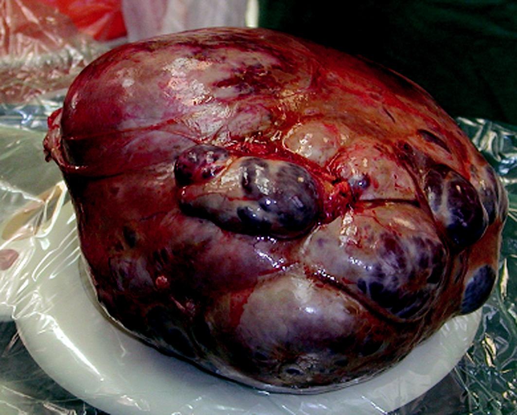 Karcinom ovaria