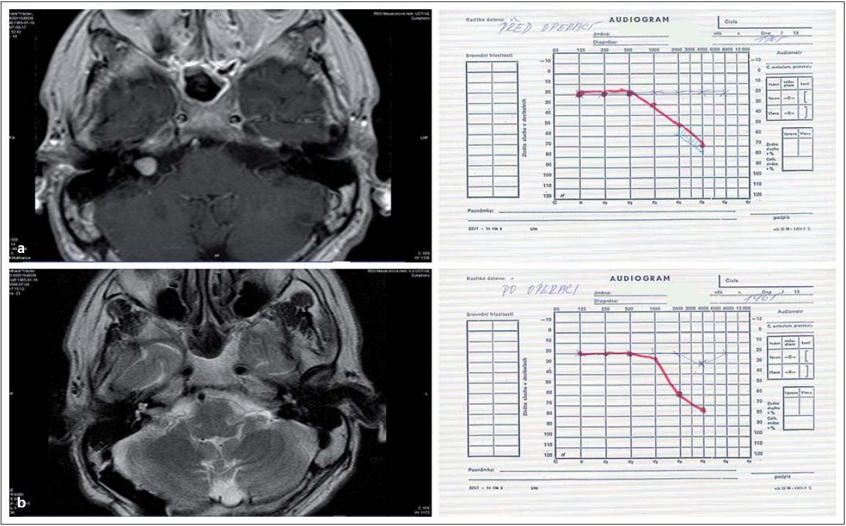 Obr. 5. Vestibulární schwannom vpravo. Obr. 5a) MR před operací a audiogram před výkonem. Obr. 5b) MR po operaci bez rezidua nádoru a zachování užitečného sluchu, audiogram po operaci nezměněn.