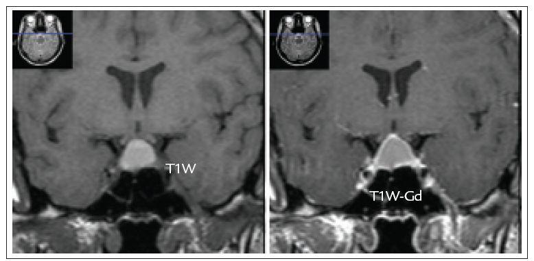 MRI nález cysticky změněného hormonálně afunkčního adenomu hypofýzy s extraselární propagací 31leté pacientky vyšetřené pro demyelinizační onemocnění.