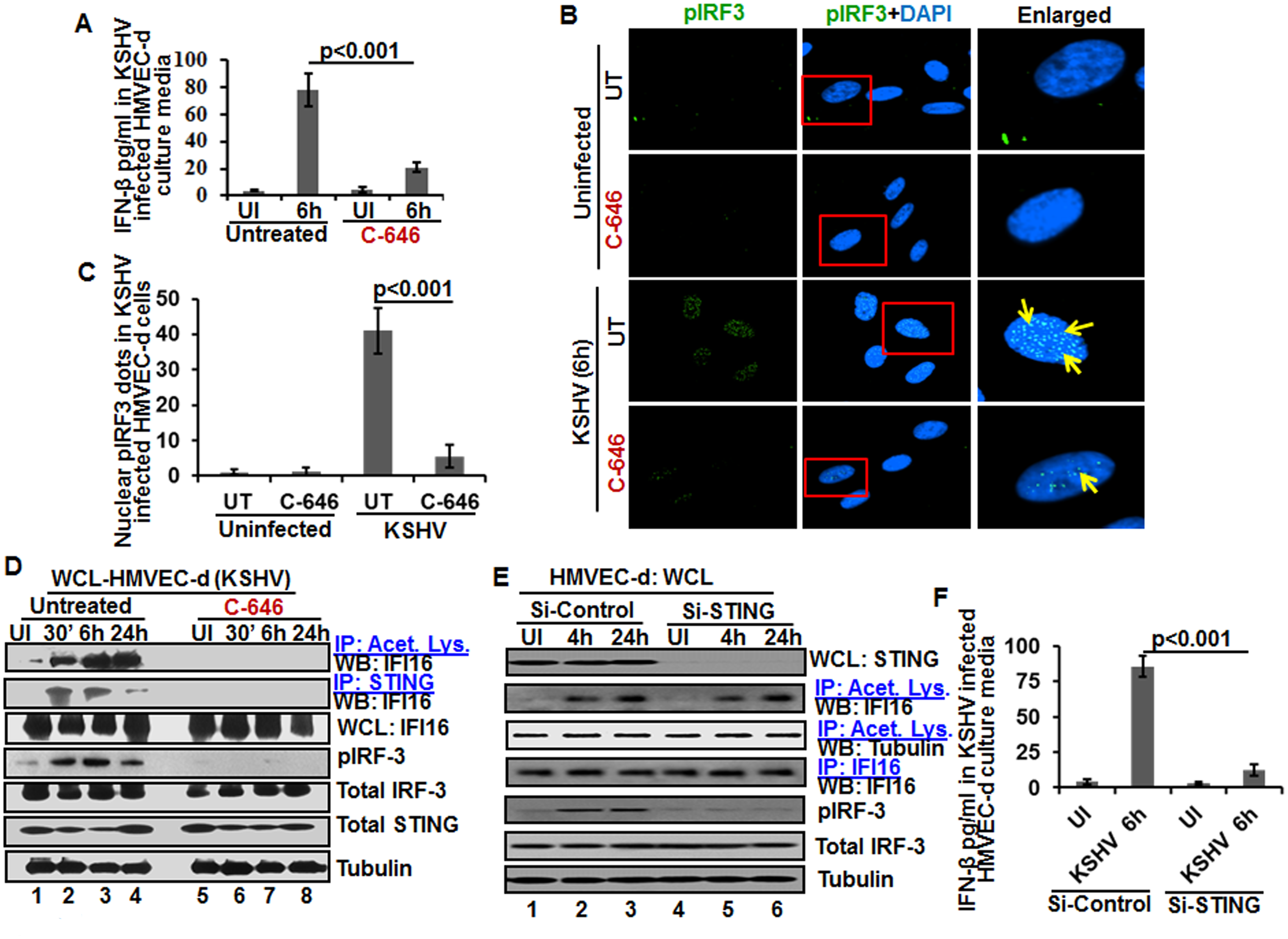 Effect of IFI16 acetylation on IFN-β production during <i>de novo</i> KSHV infection of HMVEC-d cells.