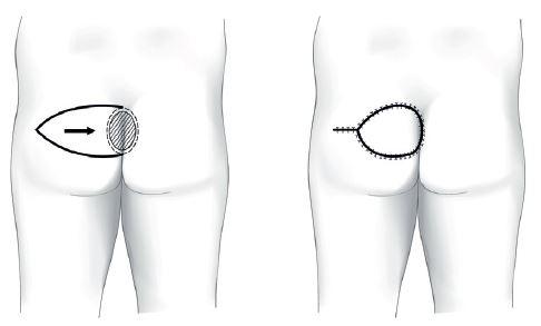 Sakrální dekubitus – fasciokutánní lalok V-Y Fig. 2: Sacral pressure ulcer – fasciocutaneus V-Y advancement flap
