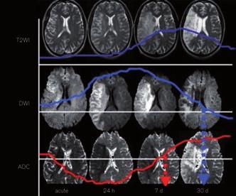 Vývoj změn u akutního mozkového infarktu na T2, DWI a ADC mapách.