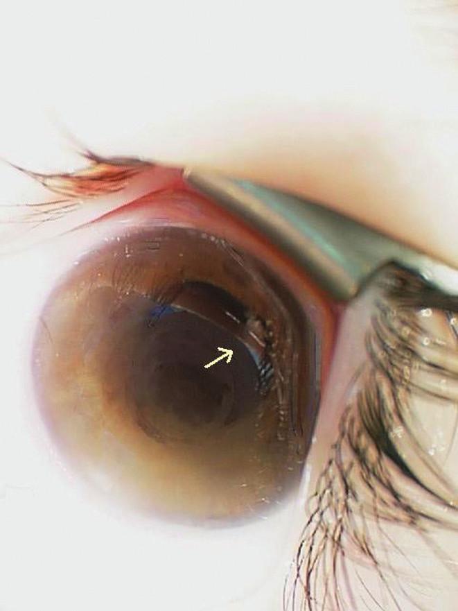 Obraz ľavého oka s tumoróznymi hmotami za dúhovkou v hornom temporálnom kvadrante