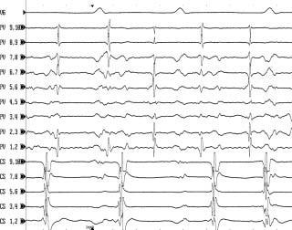 Intrakardiální EKG záznam u pacienta s fokální tachykardií z levé horní plicní žíly. V intrakardiálním záznamu snímaném 10polárním cirkulárním katétrem v levé horní plicní žíle (PV 1,2–PV 9,10) běží pravidelná síňová tachykardie (ostré potenciály), která se z plicní žíly nepropaguje na levou síň v sekvenci 1 : 1. Výsledkem je nepravidelná aktivace levé síně (viz záznam z koronárního sinu CS 1,2–CS 9,10). Katetrová ablace u pacientů s fokální tachykardií z plicní žíly se provádí metodou izolace plicní žíly pomocí obkružující radiofrekvenční léze podobně jako u pacientů s fibrilací síní. Rychlost posunu EKG záznamu je 200 mm/s.