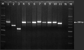 Rozlišení dlouhého a variabilní transkriptu PML/RARa (L a V formy s místem zlomu genu PML bcr1, resp. bcr2).