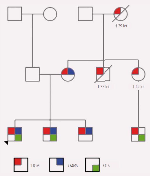 Rodokmen rodiny s výskytem dilatační kardiomyopatie (DCM). Červeně označení jedinci s klinickými projevy DCM, modře nositelé patogenní varianty v <i>LMNA</i> genu a zeleně jedinci po ortotopní transplantaci srdce.
