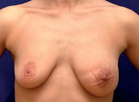Edém a zvýraznění kožních žil levého prsu. Viditelná asymetrie, výraznější otlaky od spodního prádla, náznak pomerančové kůže; podkladem je multicentrický, téměř difuzní levostranný karcinom.