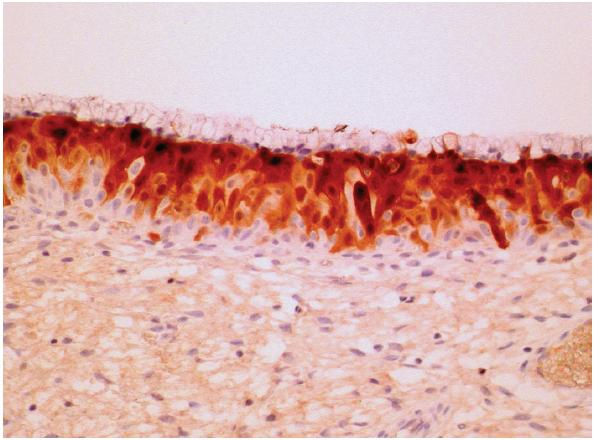 Figure 3. Eosinophilic dysplasia with diffuse strong to intermediate cytoplasmic and nuclear expression of p16 antigen in dysplastic epithelium capped by original cylindrical endocervical cells. Of note is negative basal expression of p16. (Original magnification x 100).