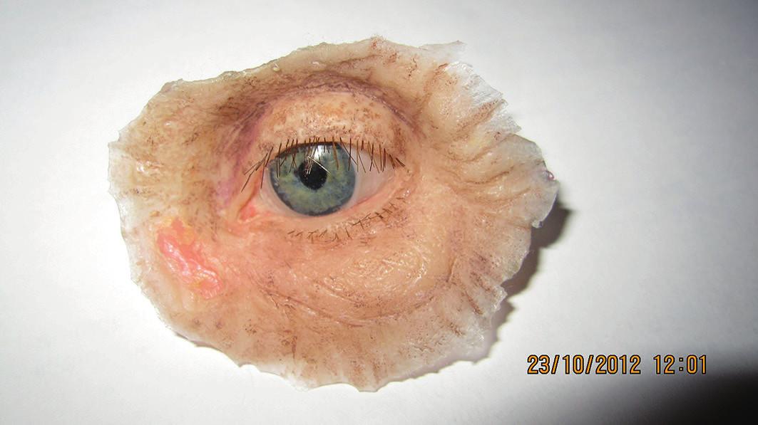 Individuálne zhotovená epitéza ľavej očnice pacientky