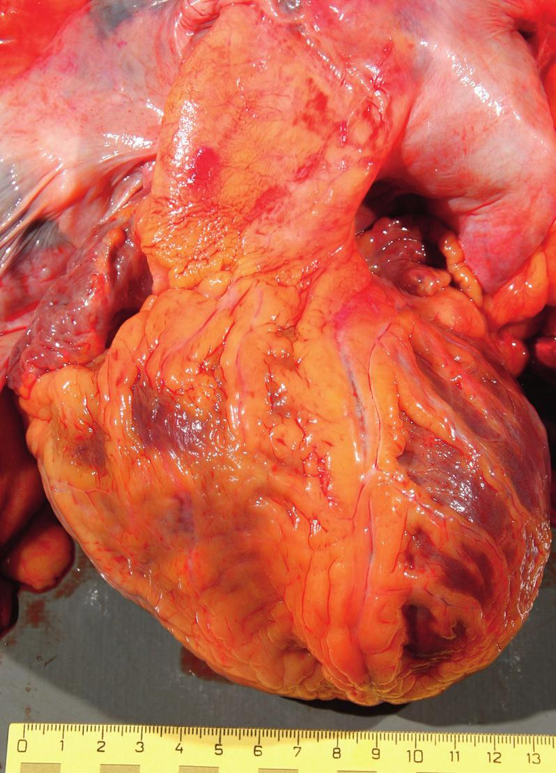 Fig. 1. The heart from the front showing a single large arterial vessel arising from the base of the heart.