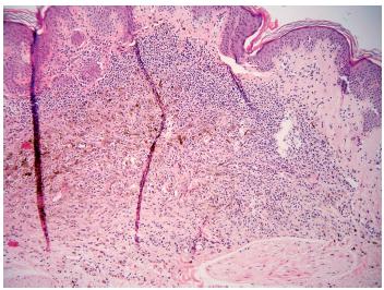 Obr. 5b. Spíše v dolní polovině intradermální složky málo pigmentovaného névu je situované ložisko pigmentovaných melanocytů