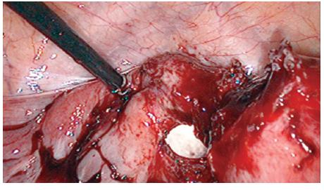 Figure 13. Dilation of the dissected apex by fingers