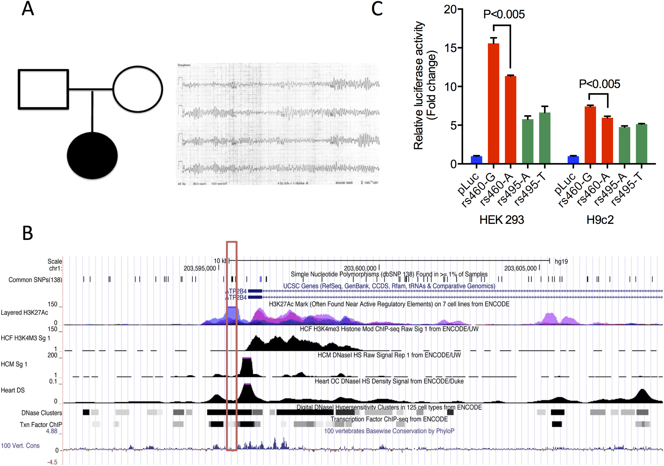 STMP identifies a likely functional regulatory variant in a novel candidate disease gene for neonatal ventricular arrhythmia.
