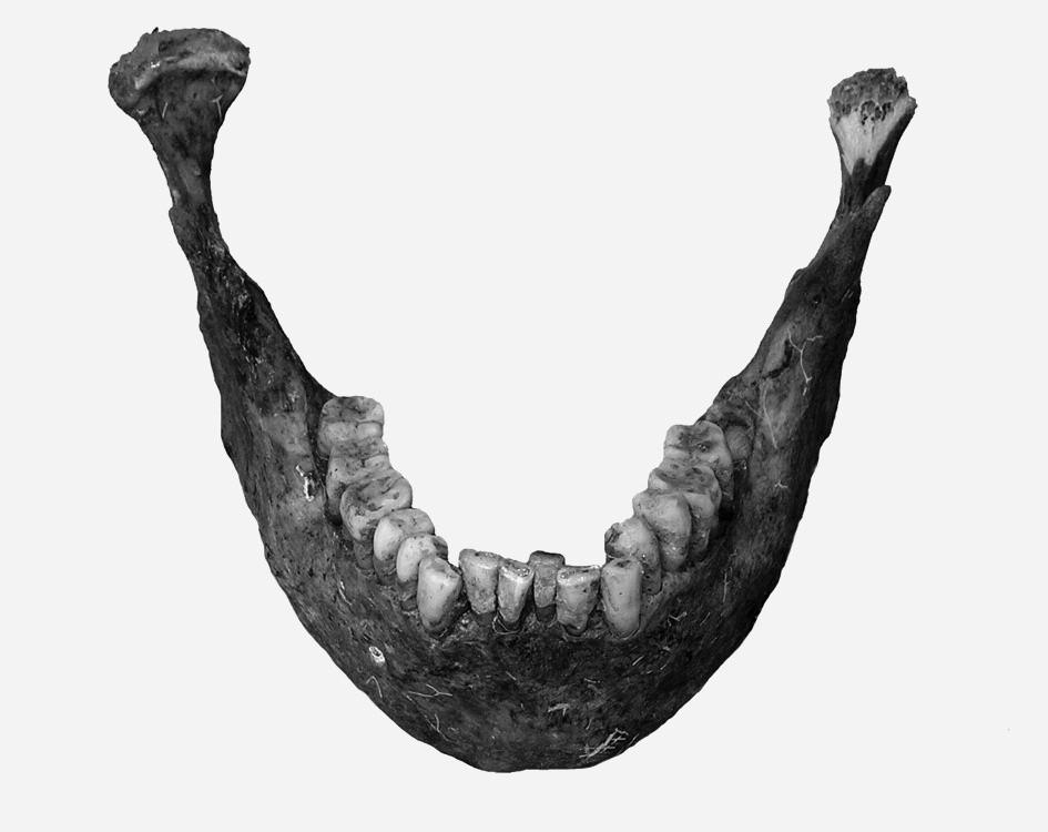 Mandibula 30–40letého muže (z hrobu č. A 829) se stěsnáním frontálních zubů v dolním zubním oblouku. Vedle mesiálních řezáků se v jedné linii nacházejí špičáky, distální řezáky jsou vysunuty linguálním směrem.