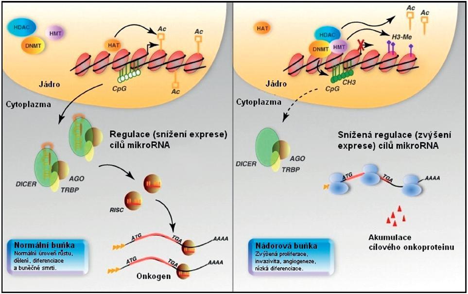 Epigenetická kontrola exprese mikroRNA. V případě normální buňky je udržována hladina onkogenu v normě působením mikroRNA (vlevo). U nádorových buněk (vpravo) může být exprese mikroRNA snížena epigeneticky metylací a ztrátou acetylace u mikroRNA genu, vedoucí k nižší regulaci cílového onkogenu a příslušného onkoproteinu, který se tak v buňce akumuluje. Upraveno podle [7].