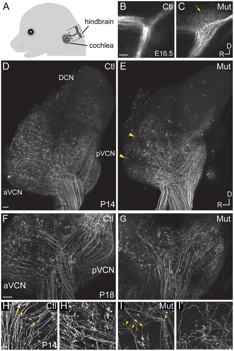 <i>Npr2</i> mutant mice show SGN central axon guidance and bifurcation defects.