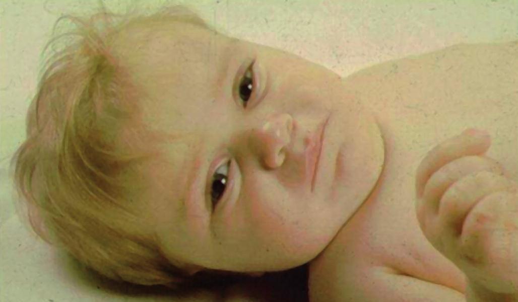 Typická facies dítěte s těžkou formou vrozeného hypopituitarismu – vpáčený kořen nosu a široce prominující čelo. Tento dvouletý chlapec s defektem transkripčního faktoru POU1F1 byl těžce růstově retardován, měl nezjistitelně nízké hladiny růstového hormonu po stimulaci a centrální hypotyreózu.