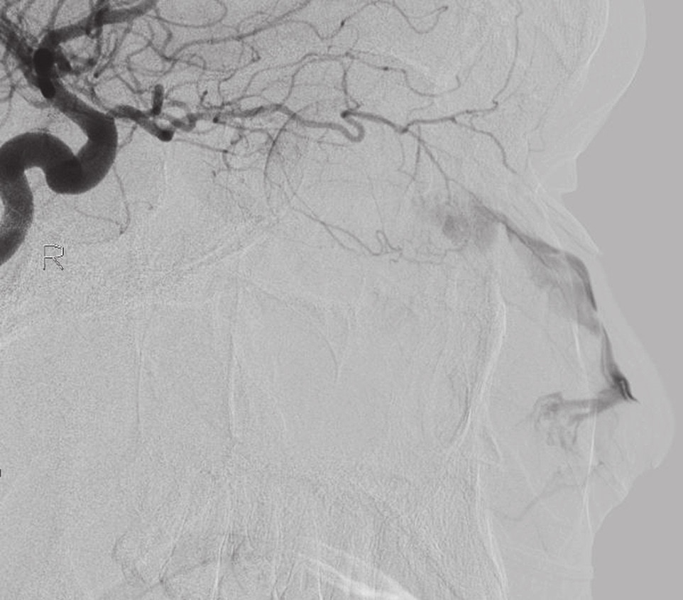Angiografie: extravazace z a. ethmoidalis anterior vpravo.