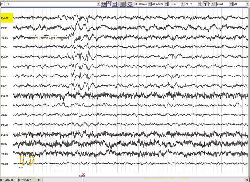EEG před ozářením Leksellovým gamma nožem.