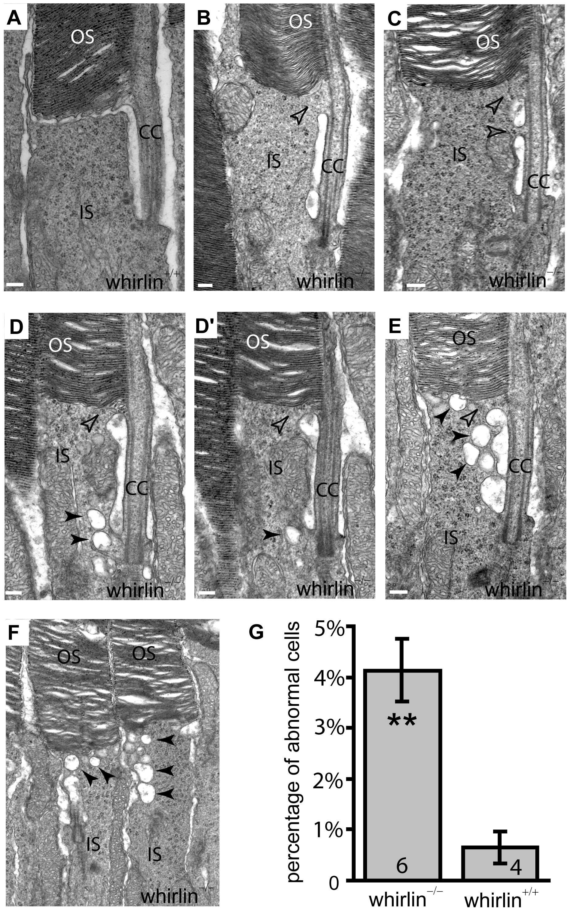 Whirlin knockout mice have morphological defects around the PMC in photoreceptors revealed by electron microscopy.