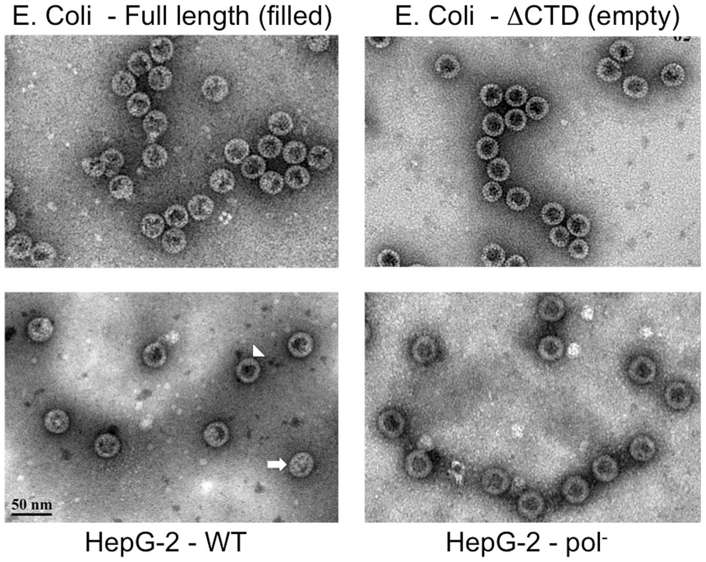 EM of intracellular capsids.