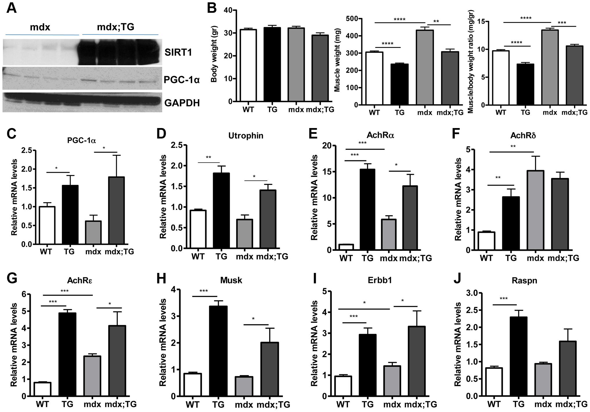 SIRT1 overexpression in skeletal muscle of WT and mdx mice induces the expression of neuromuscular junction genes and utrophin.