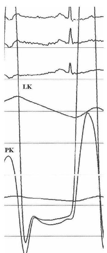 """Tlakové křivky z levé a pravé komory. V diastole dochází k rychlému vzestupu krevní tlaku s křivkou ve tvaru """"dip a plateau"""". Navíc jsou diastolické tlaky v obou srdečních komorách téměř vyrovnány, což svědčí pro diagnózu konstriktivní perikarditidy u tohoto pacienta."""