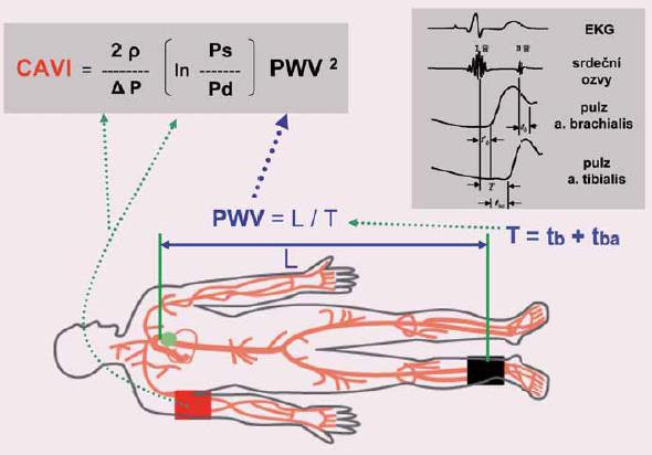 Schematické znázornění principu měření parametru CAVI, který refl ektuje tuhost aorty, femorálních a tibiálních tepen jako jednoho celku ve směru srdce – kotníky. Publikováno se souhlasem autora [11].