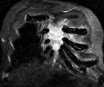 Současné CT a MR vyšetření hrudníku u pacienta s bolestmi hrudního koše a monoklonální gamapatií. Standardní RTG zobrazení skeletu u tohoto pacienta neprokazovalo vůbec žádné známky mnohočetného myelomu, zatímco na MR a CT je již zřetelný obraz pokročilé nemoci, vyžadující léčbu. Tyto snímky ilustrují, že v případně bolesti páteře a kostí u člověka s monoklonální gamapatií je nutno při negativním nálezu na klasickém RTG provést další doplňující vyšetření.