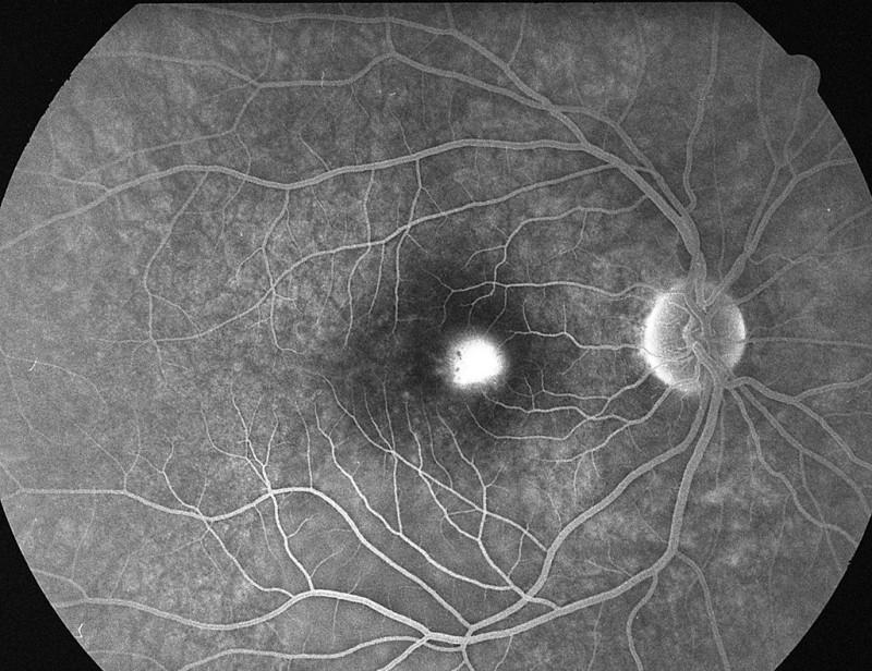 Pac. č. 1: Fluoresceínová angiografia PO: pericentrálne pri č. 3 bod presakovania