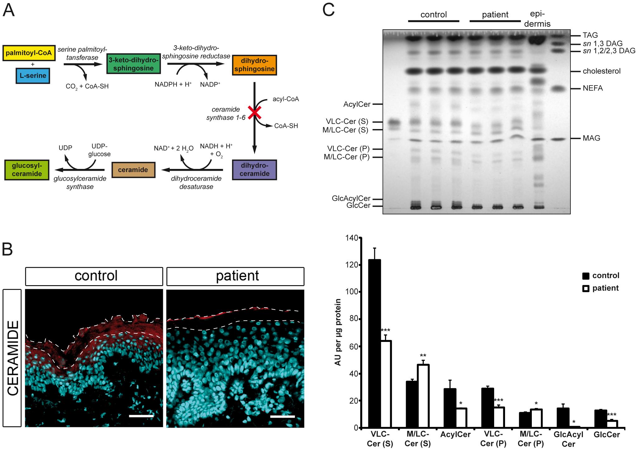 <i>In situ</i> ceramide localization and sphingolipid profile of cultured keratinocytes.