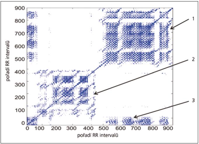 Rekurentní graf u zdravého jedince (55 let). V grafu jsou velmi dobře vidět obě fáze ortostatického testu. První fáze testu (leh) je tvořena mřížkou v levém dolním kvadrantu grafu (2). Ve stoji dochází ke zvýšení rekurence RR intervalů – mřížka v pravém horním kvadrantu má vyšší hustotu, obsahuje více rekurentních bodů (1). Zajímavé jsou malé shluky rekurentních bodů (3). Tyto shluky vídáme u zdravých jedinců v návaznosti na vertikalizaci a mohou svědčit pro sníženou aktivitu vagu, resp. nárůst aktivity sympatiku těsně po vertikalizaci. Obdobný jev lze zaznamenat i u SAVSF [9].