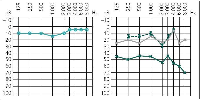 Obr. 2c. Pooperační audiometrické vyšetření, zelená křivka týden po operaci, šedá půl roku po operaci (vlevo: pravé ucho, vpravo: levé ucho).