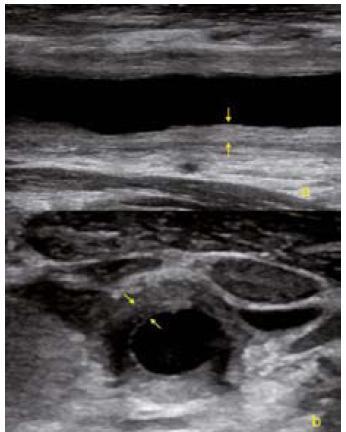 USG obrázek difuzního zesílení cévní stěny společné karotidy v akutní fázi Takayasu arteritidy. a – podélná projekce, b – příčná projekce.