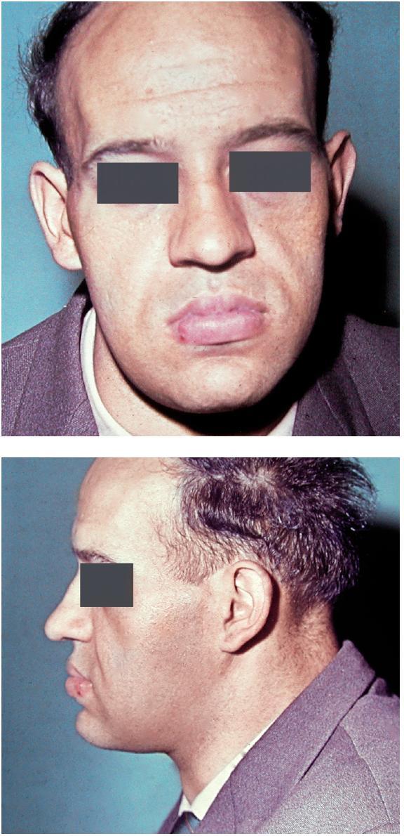 Obr. 4 a, b. Obličej pacienta trpícího akromegalií z frontálního pohledu (a) a bočního pohledu (b), též na obr. 6a (foto: archiv Stomatologické kliniky LF UK a FN Hradec Králové)