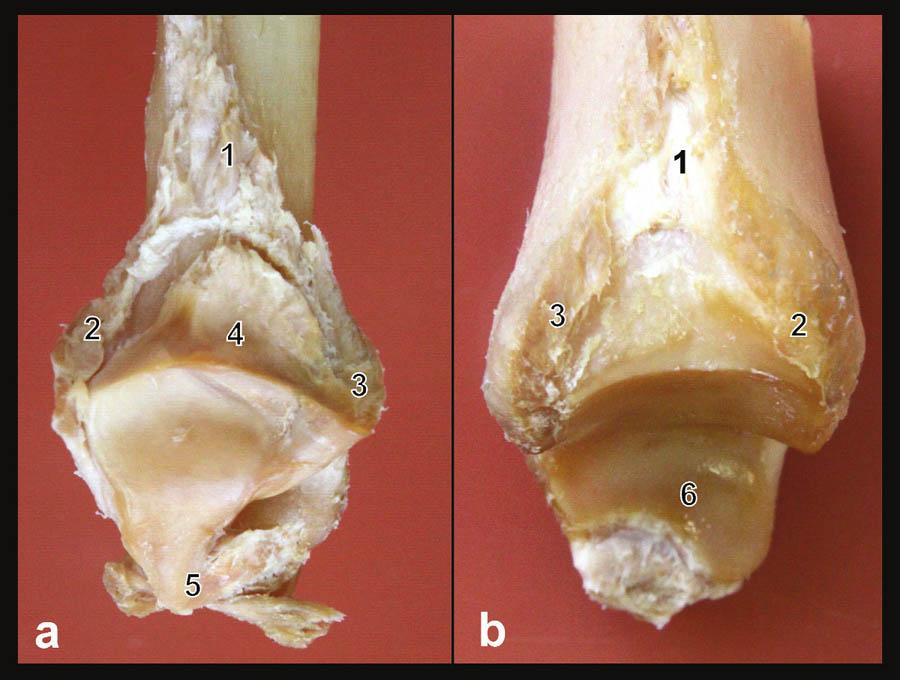 Anatomie vazů tibiofibulární syndesmózy Preparát pravého hlezna; a – mediální plocha distální fibuly, b – laterální plocha distální tibie. 1 – lig. tibiofibulare interosseum, 2 – lig. tibiofibulare ant., 3 – lig. tibiofibulare post., 4 – plica synovialis tibiofibularis, 5 – společný začátek tří fibulárních vazů, 6 – kloubní plocha mediálního kotníku