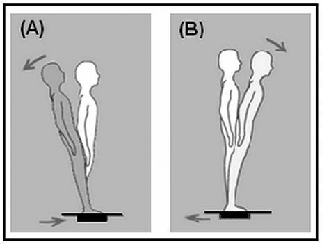 Směry translace plošiny a posturální reakce na tyto translace. A) Translace plošiny dozadu. B) Translace plošiny dopředu (upraveno dle 19).