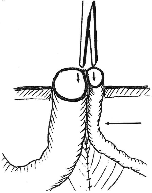 Schéma Grossovej metodiky s naznačeným uložením klemu, ktorý má urobiť tlakovú nekrózu Fig. 2. The Gross method with indicated placement of a clam, expected to cause pressure necrosis