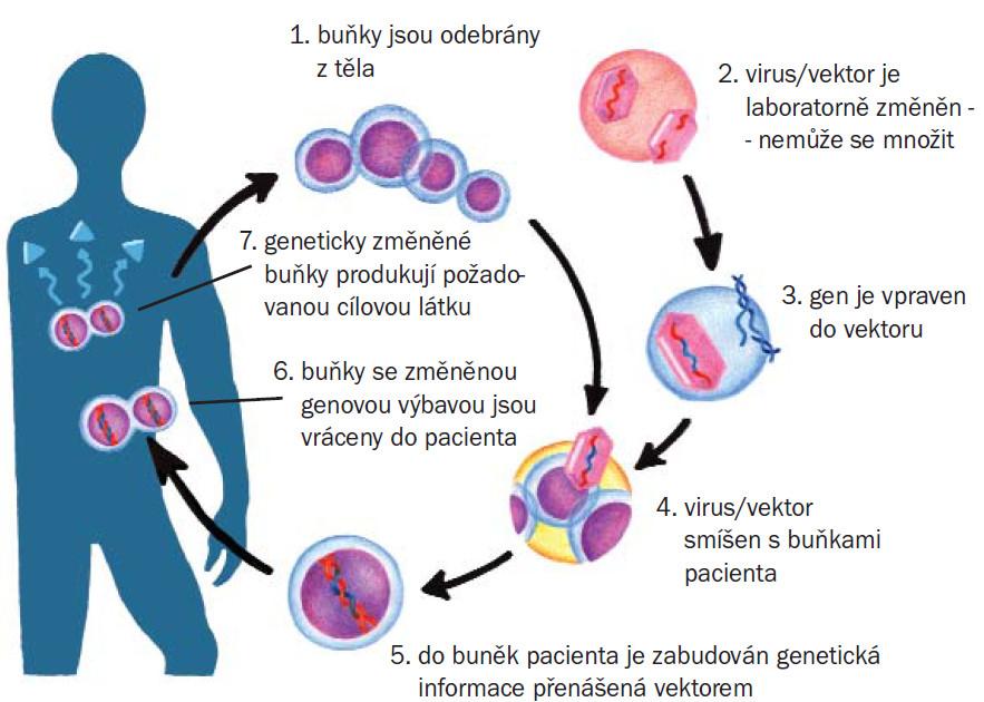 Schéma. Průběh genové terapie.
