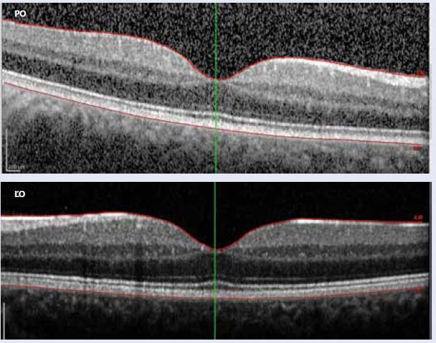 OCT 26. 2. 2016: pravé oko (PO) stále nález fyziologický, ľavé oko (ĽO) – fokálny edém makuly je už vstrebaný, foveálna depresia v norme