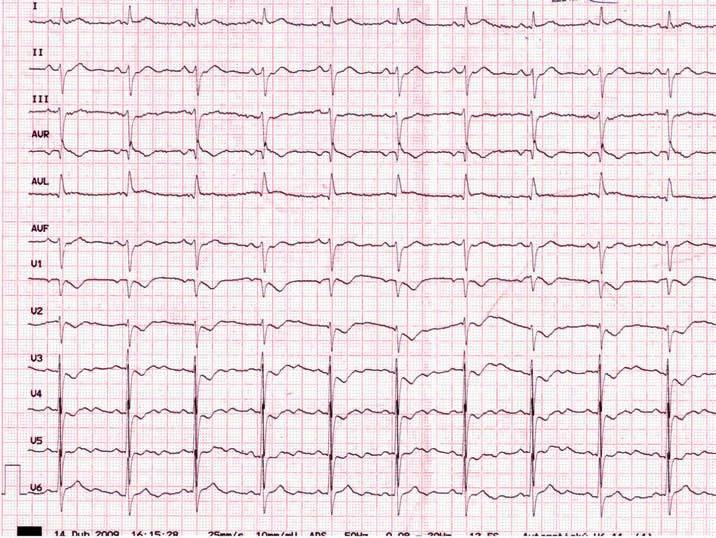 Pravý zadní (true-posterior, inferobazální) infarkt myokardu při kritické stenóze ramus circumfl exus.