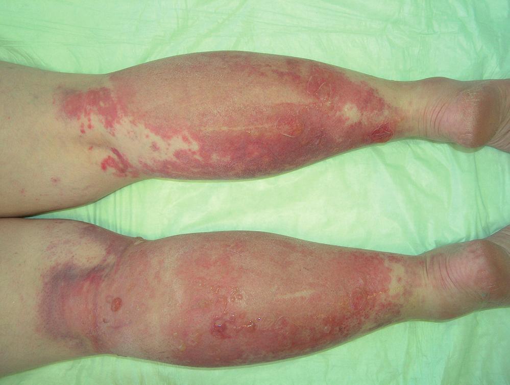 Kontaktní alergická dermatitida na bércích (ketoprofen).