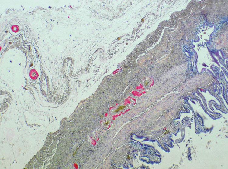 Depozita amyloidu v adventicii cévní stěny (barvení na kongo červeň) Fig. 1. Amyloid deposits in the vascular wall adventitia (Congo red staining)