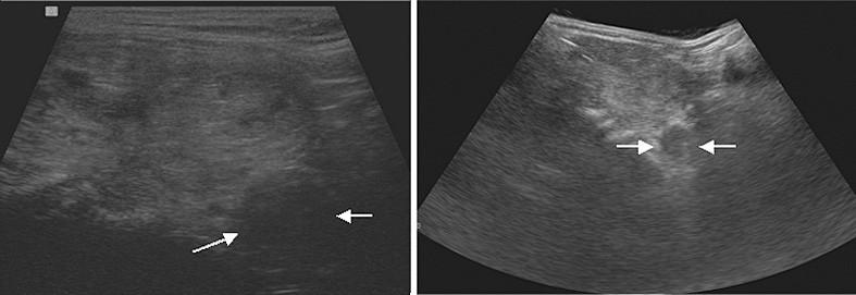 Sonografické vyšetření štítné žlázy – neostře ohraničené hypoechogenní ložisko s minimálními průtoky hluboko pod dolním polem levého laloku štítnice (14 × 18 × 20 mm (2,5 ml)) (šipka)