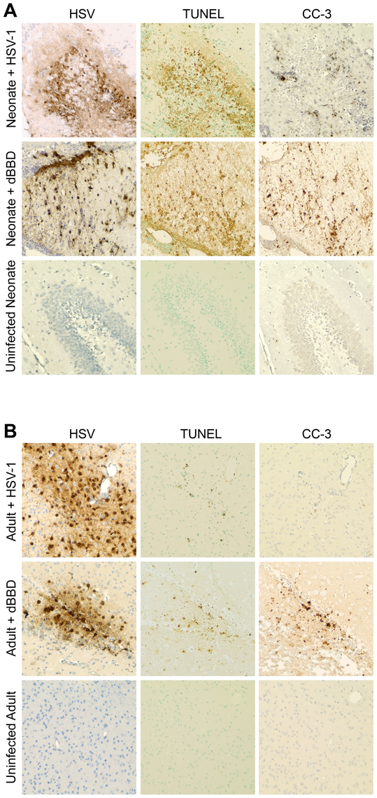 Infected regions with activated autophagy in the newborn mouse brain are associated with markers of apoptotic cell death.