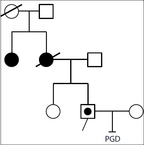 Proband s Lynchovým syndromem, mutací v genu MSH2. Matka zemřela v 47 letech na nádor žlučových cest a uteru. Teta probanda (sestra matky) nese stejnou mutaci jako proband, předpokládáme tudíž, že tuto nese i matka probanda. U sestry probanda byla přítomnost mutace vyloučena molekulárně-biologickou analýzou MSH2 genu. První pokus IVF se nezdařil, embrya nemohla být vyšetřena, cyklus bude opakován.