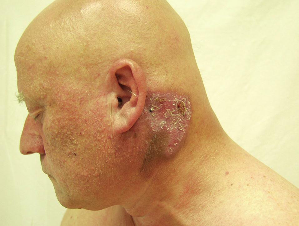Tumorózní ložisko na hlavě, ztráta vlasů.
