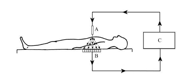 Monopolární systém. Proud vychází z generátoru, prochází mezi nástrojem, pacientem, disperzní elektrodou a vrací se zpět do generátoru. Na hrotu elektrody je hustota proudu největší, zde je nejintenzivnější tvorba tepla. Elektrický proud se vrací do elektrochirurgické jednotky přes disperzní elektrodu s relativně velkým povrchem, který umožní proudu vrátit se o nízké hustotě bez signifikantního tepelného účinku. A–aktivní elektroda, B–disperzní (vratná) elektroda, C–elektrochirurgická jednotka, → – směr pohybu elektronů