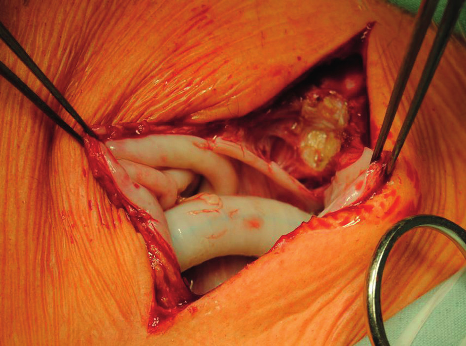 Proximal anastomosis of axillofemoral bypass before its explantation. A white pseudocapsule is present around the graft.