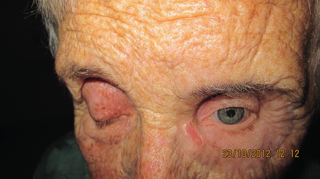 Detail oblasti očnice pri pohľade oka smerom nadol u pacientky s nasadenou ľavou epitézou